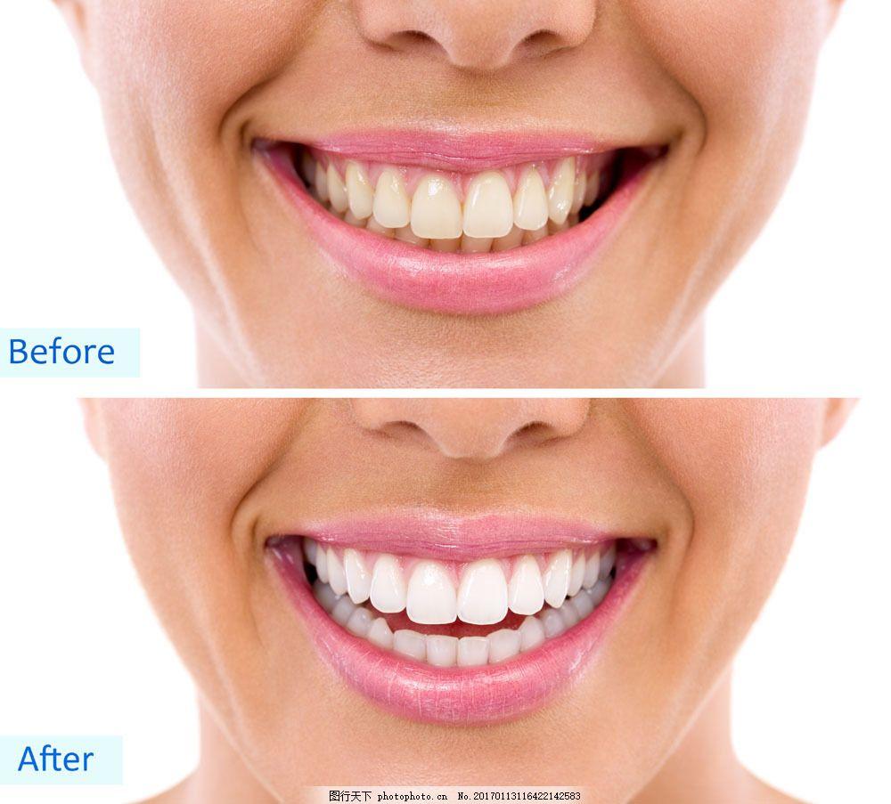 洁牙前后对比图片素材 牙齿美白 微笑 牙齿 牙科 口腔医疗 牙齿医疗